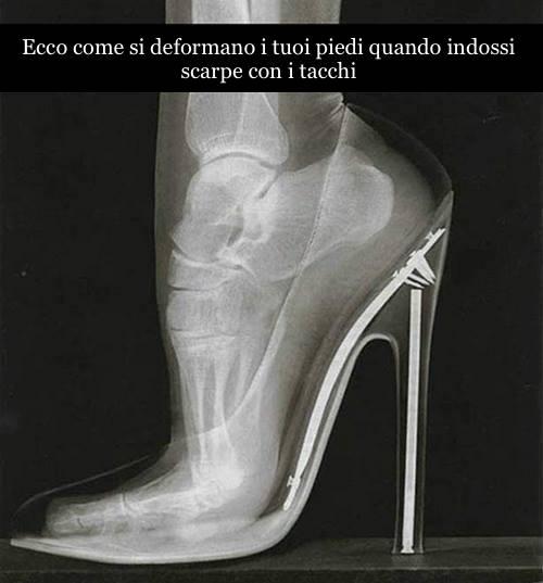 dolori ai piedi e alle gambe