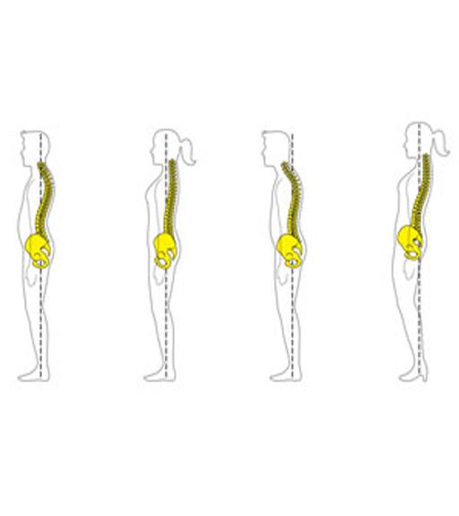 Raddrizzare la schiena